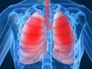 An image dispalying the Lung Cancer